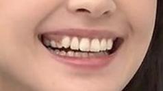 新垣結衣の歯2
